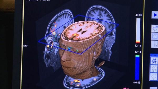 représentation du cerveau de Nurith Aviv